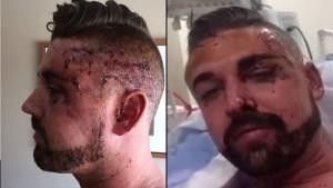 dallas pride man beaten
